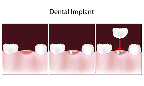 West Chester dental implants