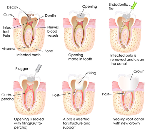 root canal in West Chester