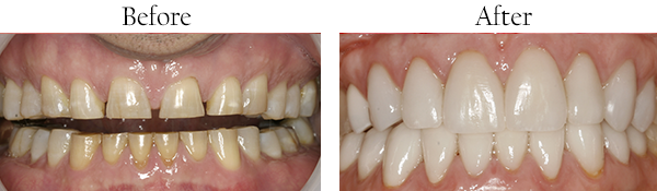 Mason dental images