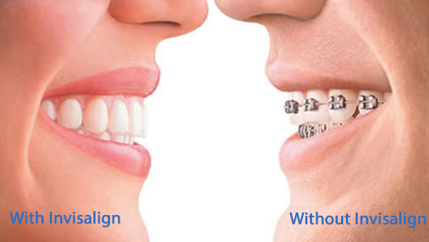 West Chester invisalign